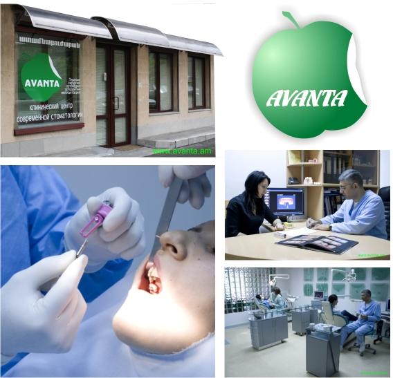 Заказать Имплантация зубов в Армении