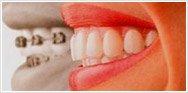 Заказать Ортодонтия