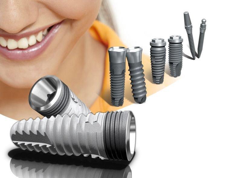 Заказать Установка зубных имплантатов
