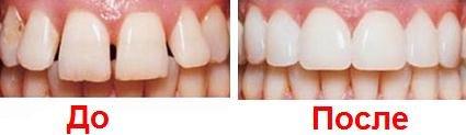 Заказать Эстетическая стоматология