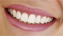 Восстановление утраченного зуба