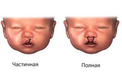 Врождённые пороки лица